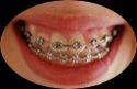 Orthodontics Dental Treatment