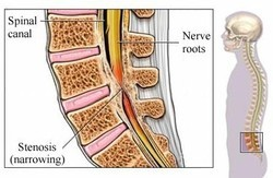 Lumber Spine Surgery In India