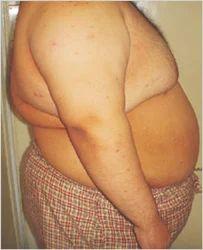 Obesity & Diabetic Surgery