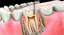 RCP Root Canal Treatment