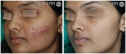 Acne Moderate Treatments