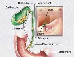 Gallstones Treatment