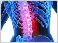 Spine Decompression
