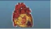Cholestrol & Triglycride