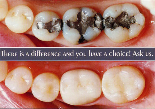 Metal Free Fillings & Smile Makeover Service Provider from New Delhi