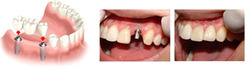 Dental Implants Services