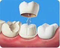 Dental Caries - Coronal, Root