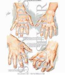 Juvenile Rheumatoid ArthritisChronic, inflammatory, systemic