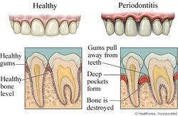 Gum Disease Dental Treatment Services