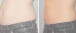 Non-Surgical Liposuction Services