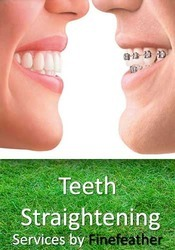 Teeth Straightening Services