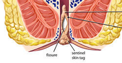 Piles Fissure Fistula Treatment