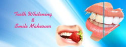 Teeth Whitening And Smile Makeover