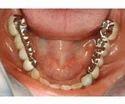Flexible Partial Denture