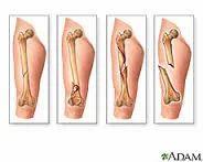 Fractures Treatment Service