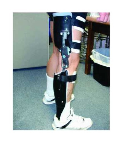 49b434f7ee Artificial Limbs for Lower Extremity - Caliper/ Hkafo / Orthosis/ Auto Lock  Knee Manufacturer from Delhi