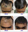 Baldness Solution