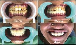 Full Mouth Rehabilitation Services