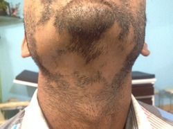 Dr ilyas patels skin clinic service provider of diagnosis of treatment of hair diseases like alopecia urmus Choice Image