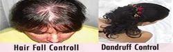 Hair Fall & Dandruff Control