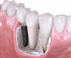 Immediate Function Implants Treatment