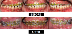 Orthodontic-Braces Treatment Service