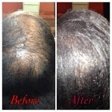 Alopecia Hair Clinic