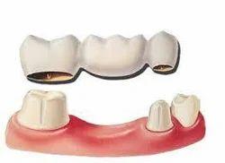 Bridges Dental Treatment