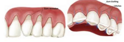 Periodontal Surgery / Gum Surgery