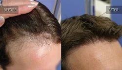 Body Hair Implant