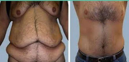 Post Weight Loss Cosmetic Surgery In Mota Singh Nagar Jalandhar