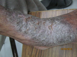 Treatment of Skin & Nails Diseases