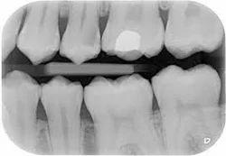 Dental X Ray Centre