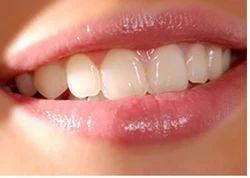 Full Mouth Rehabilitation & Teeth Makeover